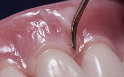 Morfologia gengivale, spunti per modellazione e colorazione delle flange protesiche