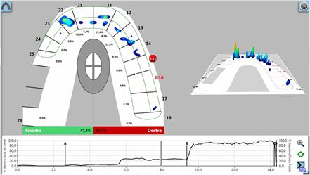 grafico del T-Scan che rileva occlusione al 20%