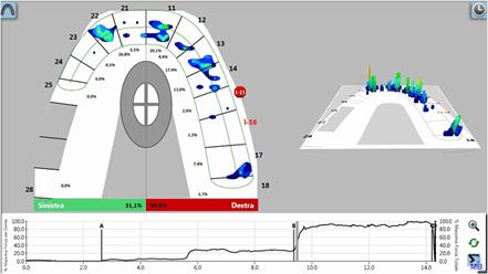 grafico del T-Scan che rileva occlusione al 50%