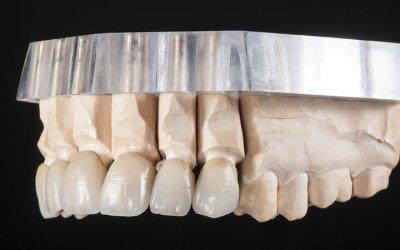 Stratificazione ceramica, 3 masse per un sorriso naturale