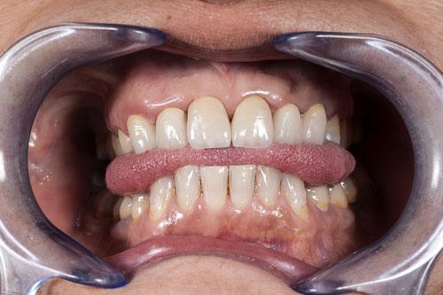 bocca paziente con denti in ceramica
