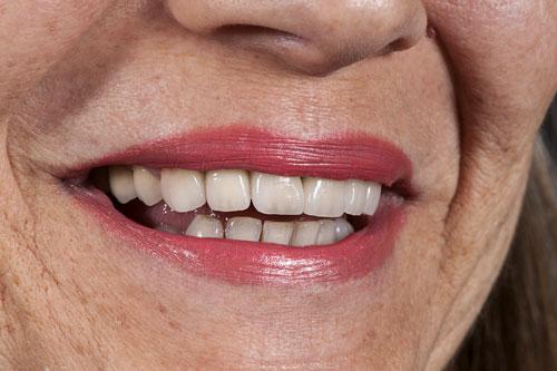 sorriso paziente dopo restauro estetico in ceramica