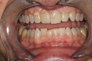 bocca da riabilitare T-Scan