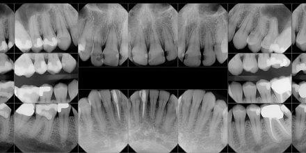 radiografia bocca da riabilitare T-Scan
