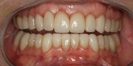 bocca post trattamento T-Scan