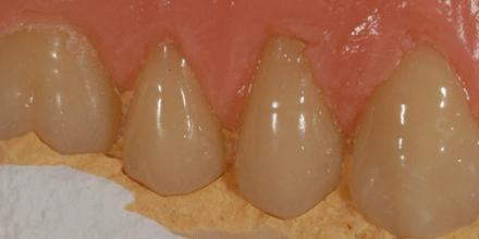 spostamento denti causato da polimerizzazione