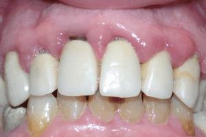 colletti dentali parzialmente scoperti