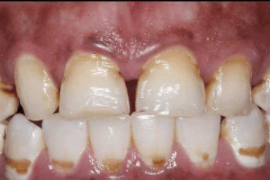 dettaglio su colletti dentali