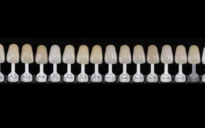 Rilevazione del colore: le scale colori in odontoiatria
