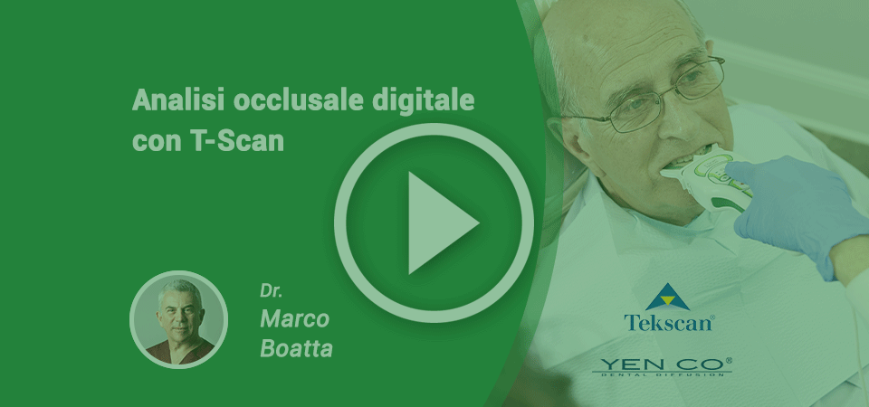 Analisi Occlusale Digitale con T-Scan, il VIDEO