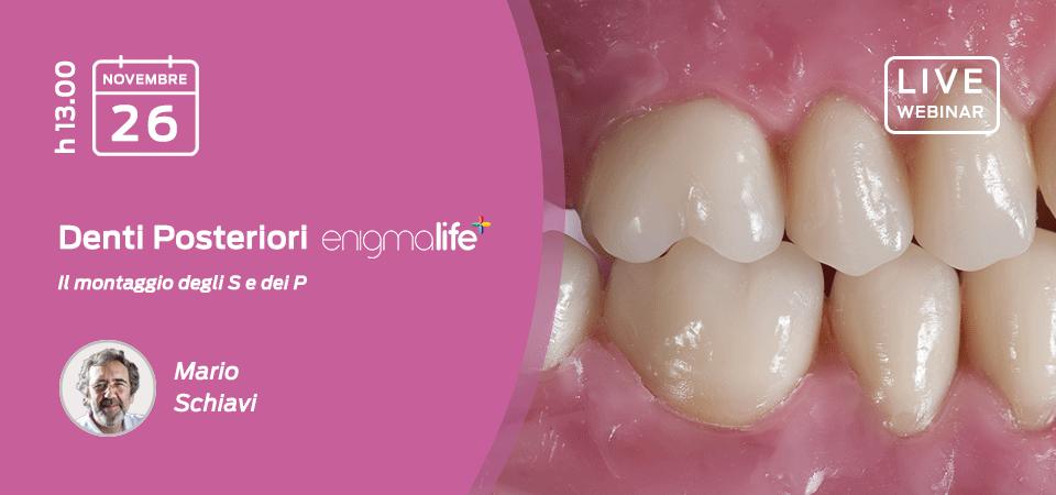 Denti Posteriori Enigmalife+: il montaggio degli S e dei P