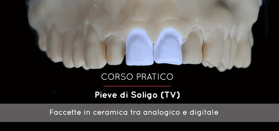 Faccette Estetiche in Ceramica: Protocolli tecnici analogici e digitali