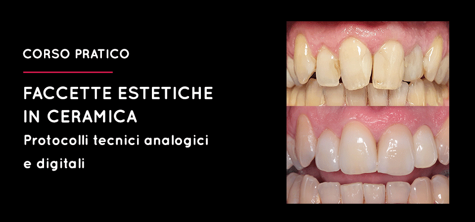 Faccette Estetiche in Ceramica: Protocolli tecnici analogici e digitali, Pieve di Soligo TV