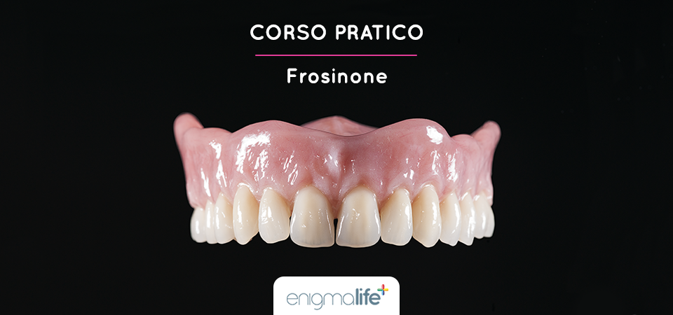 Protesi esteticamente naturali e biologicamente funzionali: corso pratico, Frosinone
