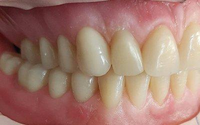 Il montaggio dei denti in protesi totale: classi edentule e scelta dei denti