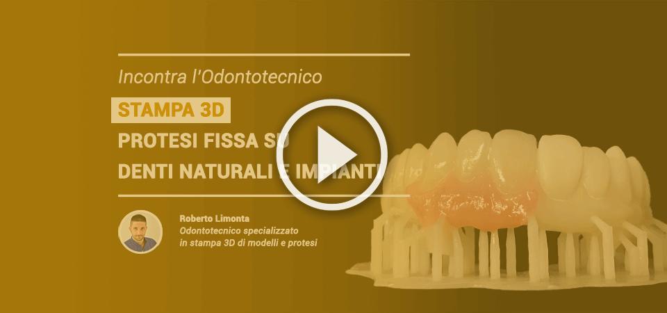 Incontra l'odontotecnico: STAMPA 3D – Protesi fissa su denti naturali e impianti, video