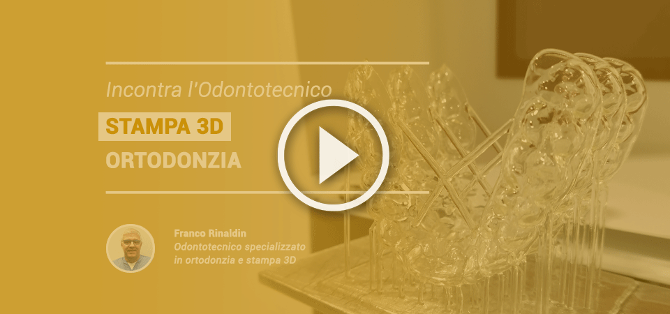 Incontra l'odontotecnico: STAMPA 3D – Ortodonzia, video